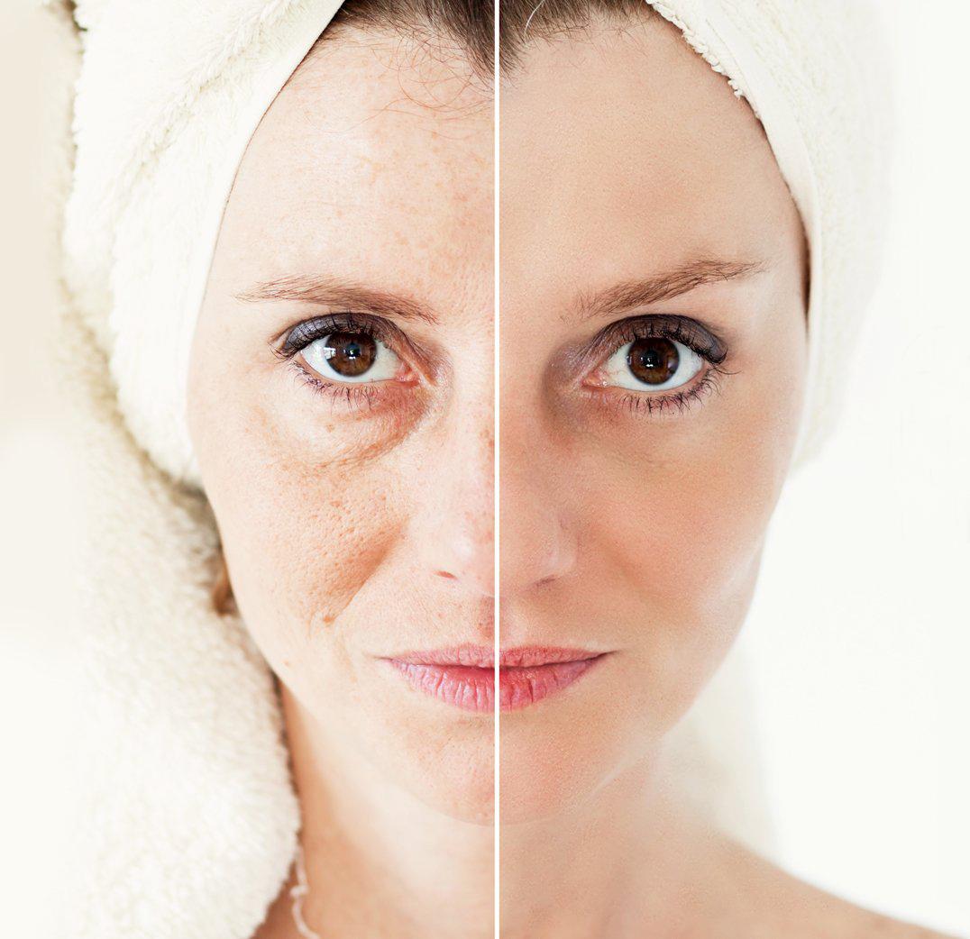 Anti-aging kúra