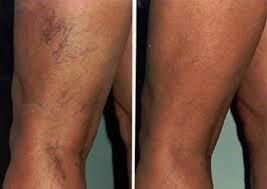 vacustyler a cellulit ellen 3