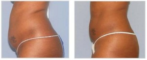 Ultrashape V3 fat removal treatment